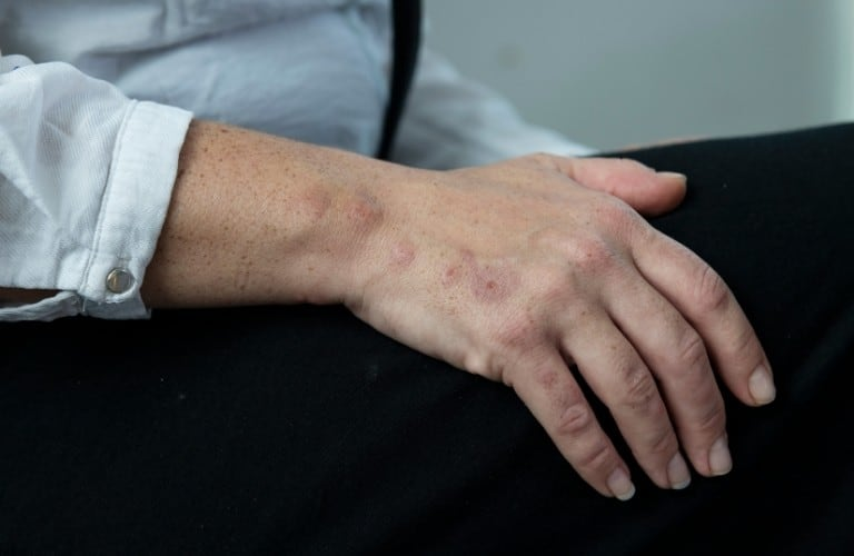 A line of bed bug bites on a man's hand.